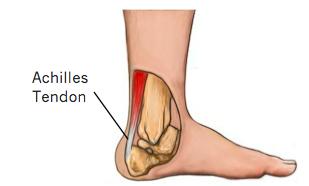 Achilles Tendon Tears